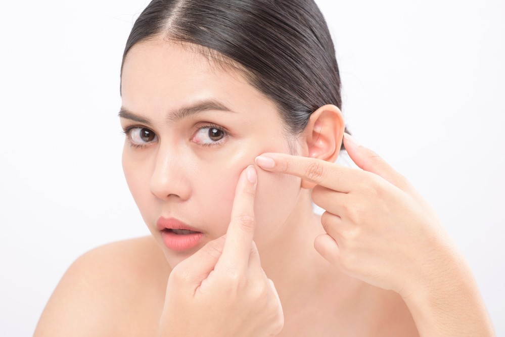 Acne or Rosacea? Tips for Diagnosis, Treatment and Crossover