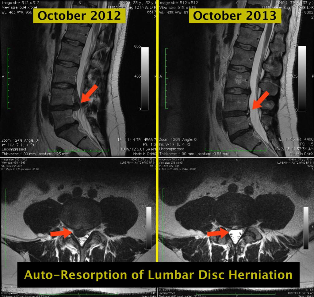Lower Lumbar Mri Contrast