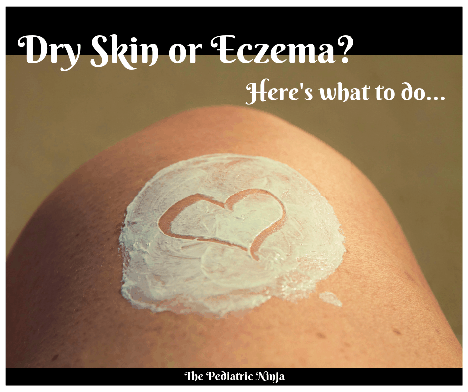 Dry Skin or Eczema? Here's what to do.