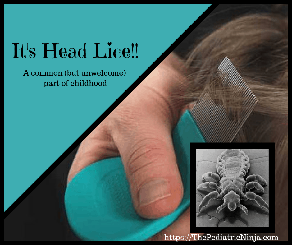It's Head Lice! A common but unwelcome part of childhood