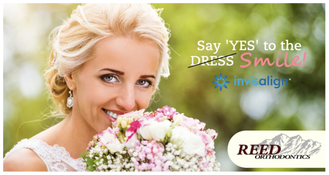 Invisalign for a Picture Perfect Wedding Day