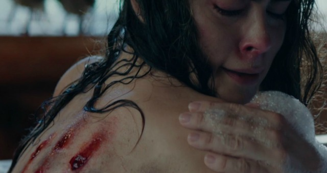 Eli Roth's Cabin Fever Remake Gets First Trailer