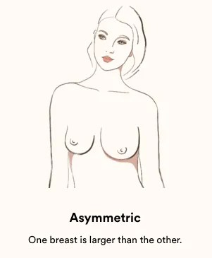 asymmetrical breasts