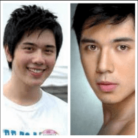 Before and After Photos: Paulo Avelino's nosejob