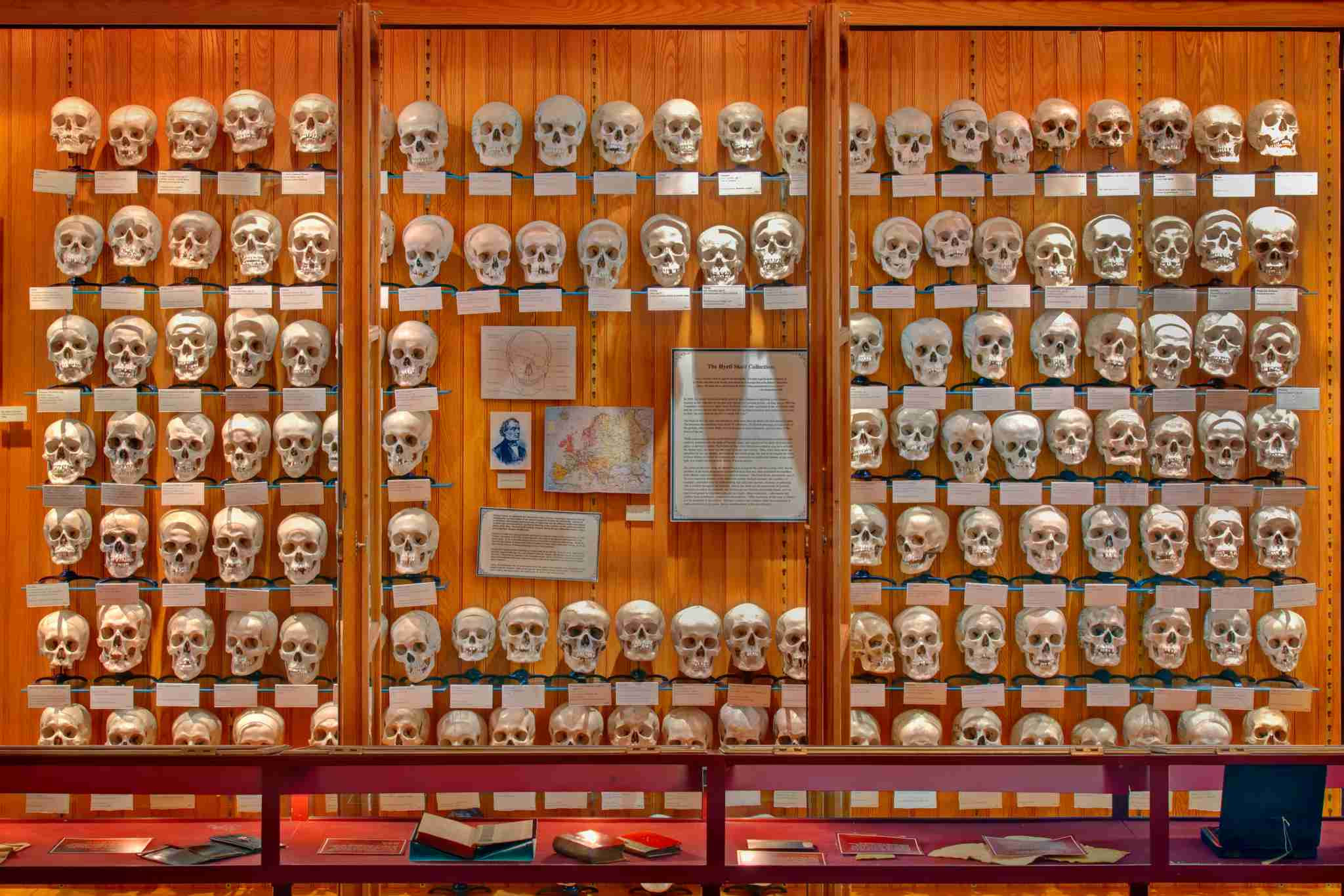 Image courtesy of George Widman for the Mütter Museum of The College of Physicians of Philadelphia.