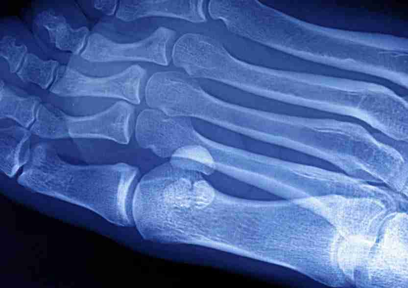 Plantar Wart, Foot X-Ray, Two Warts Between The Big Toe And The Index Of The Right Foot. (Photo By BSIP/UIG via Getty Images)