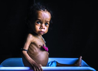 Did time win over malnourishment in India or vice versa_The Policy Times