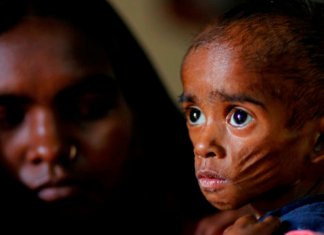 Is India under Serious Threats of Triple Burden of Malnutrition_the policy times