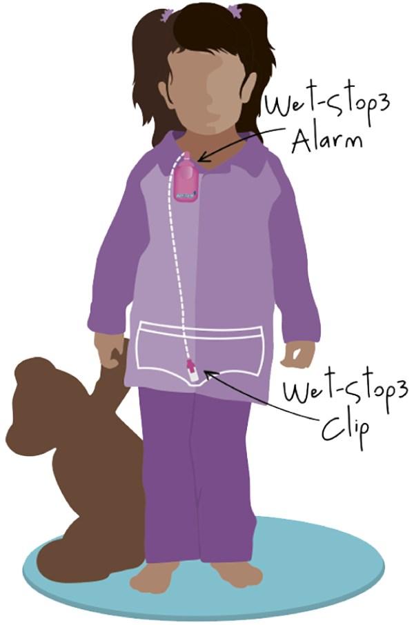 Wet-Stop 3+ wearable bedwetting alarm - sensor positioning for girls.