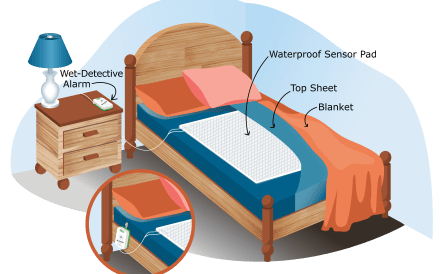 Illustration of the Wet-Detective bed pad alarm system for incontinence.