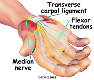 carpal tunnel median nerve