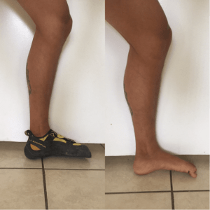foot ankle inversion rock climbing injury the prehab guys