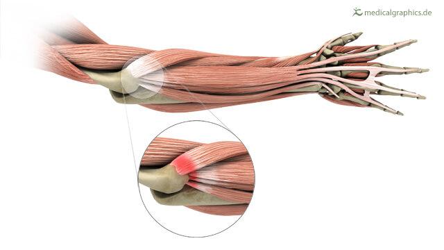 how to treat tennis elbow the prehab guys