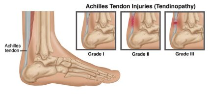 Achilles Tendon injuries how to manage achilles tendon pain the prehab guys