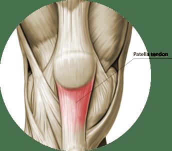 Jumper's Knee Exercises