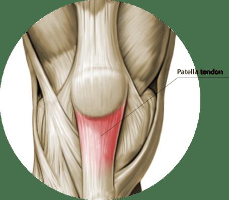 Jumper's Knee Exercises patellar tendon anatomy prehab guys