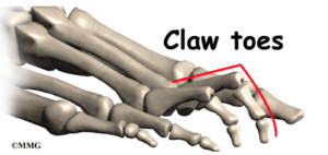 claw toes exercises to improve foot strength the prehab guys