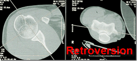 humeral retroversion improve reaching arm behind back the prehab guys