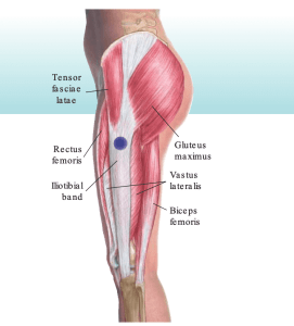 IT band anatomy runner's knee causes and treatment the prehab guys