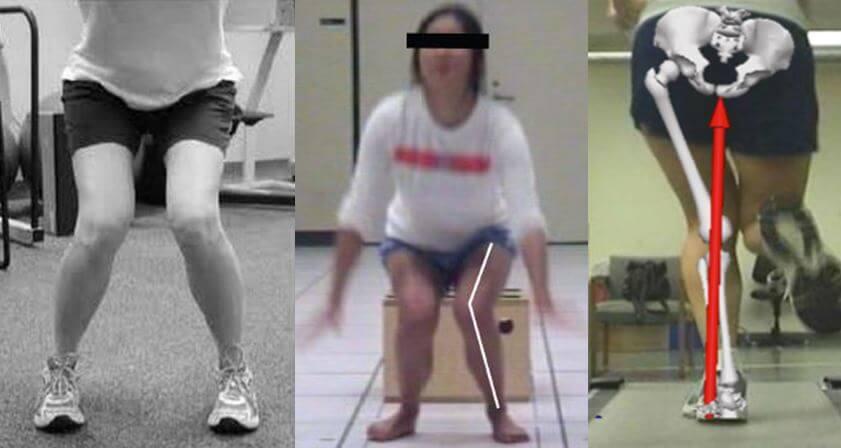 runners knee femur adduction and internal rotation the prehab guys