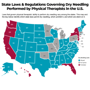 dry needling physical therapy state laws prehab guys