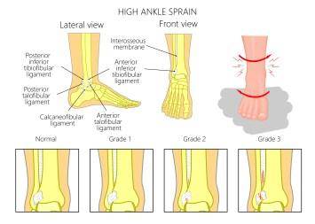grades of high ankle sprains