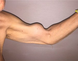 biceps tendon pain exercises biceps tendon rupture popeye deformity the prehab guys