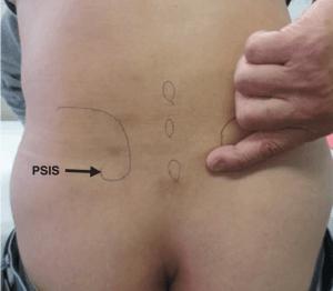 fortin finger sign hip alignment the prehab guys