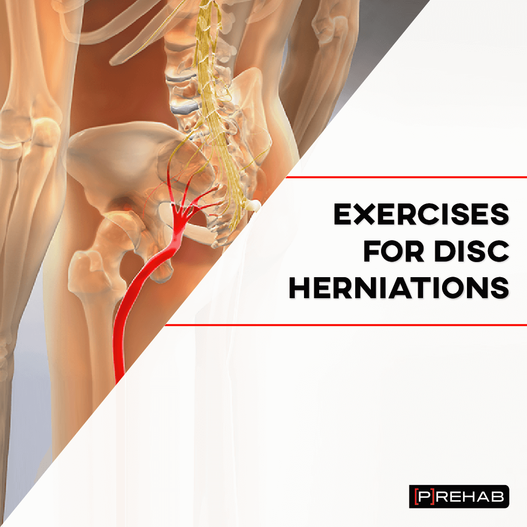 exercises for disc herniations the prehab guys