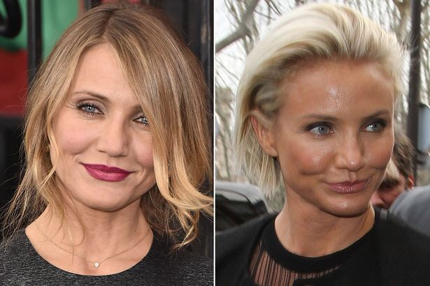 Cameron Diaz before and after filler