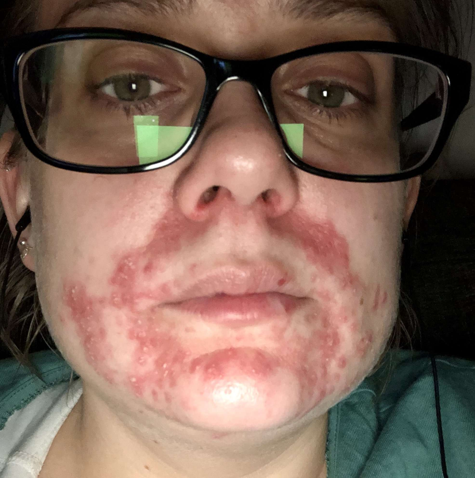 Close up of Lisa's face showing the atopic dermatitis around her mouth
