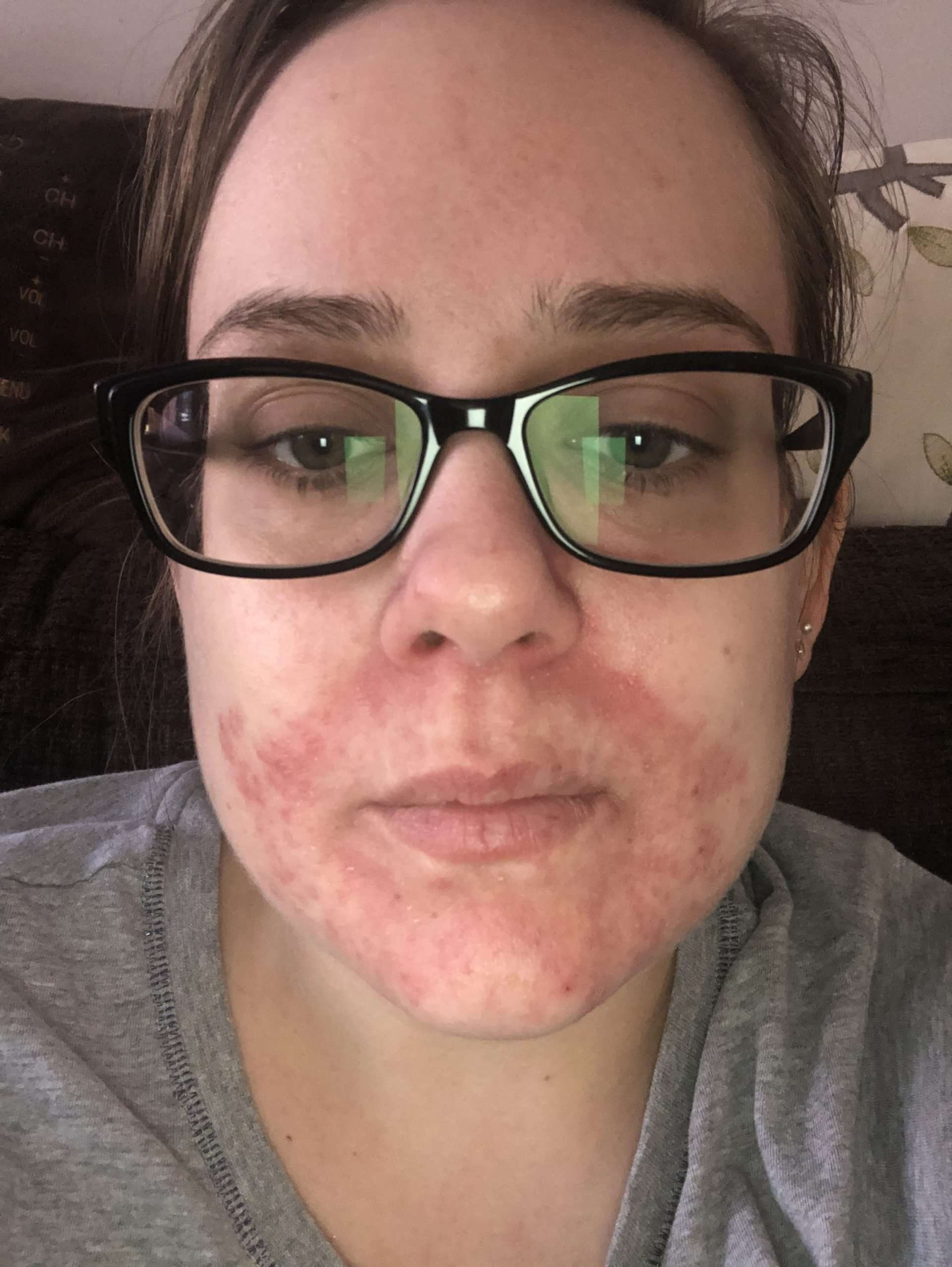 Lisa is looking at the camera. The skin around her mouth is slightly red due to Atopic Dermatitis