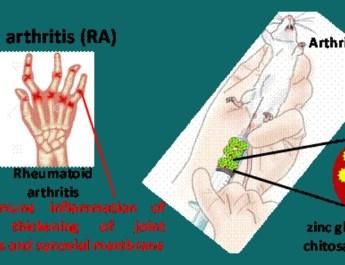 भारतीय वैज्ञानिकों ने अर्थराइटिस के इलाज के लिए नैनोपार्टिकल की खोज की