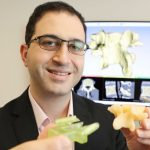 3D printing aiming to improve spinal surgery at Westmead Hospital