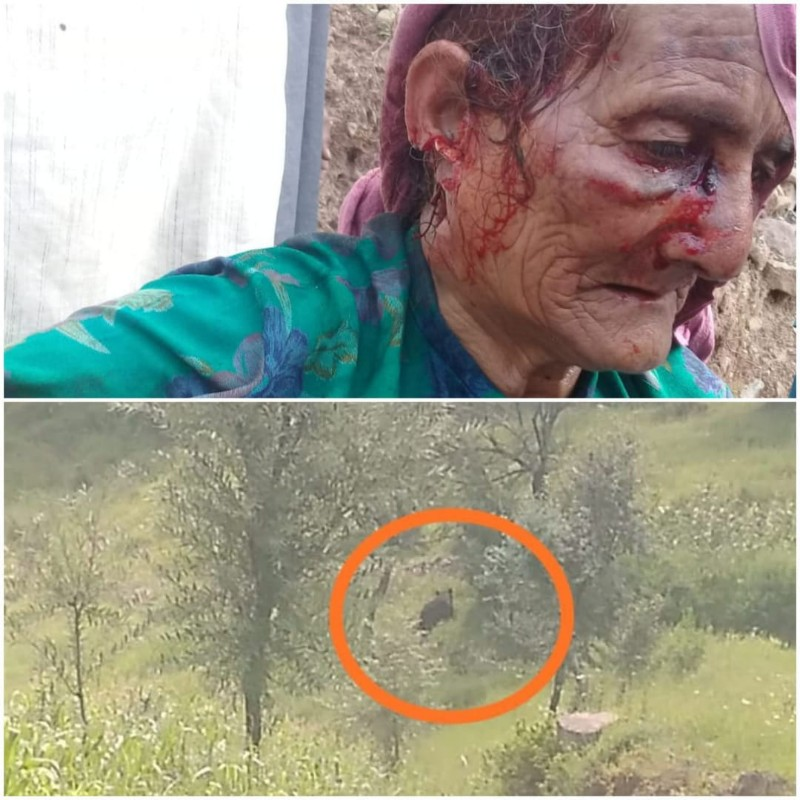 Elderly woman injured in bear attack in Poonch
