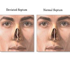 Nose Surgery – Experience | The Real Sasha