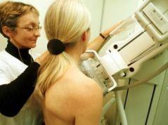 Breast screening in Estepona