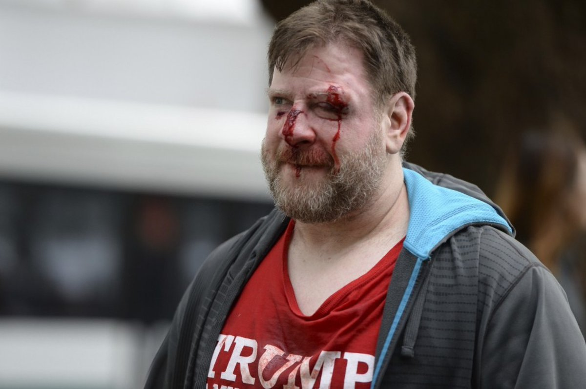 Conservative Patience With Leftist Violence Is Not Infinite