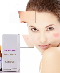 SERUM TRỊ MỤN – THE RICH SKIN ACNE SERUM