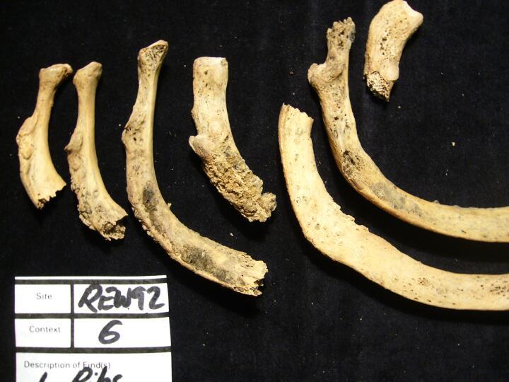 Forensic Anthropology: Bone Trauma