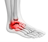 Foot Pain Condition