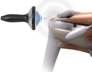 Shockwave therapy for pain treatment in Marin
