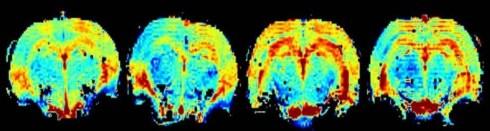 (Pic: Neuroscience Ireland)