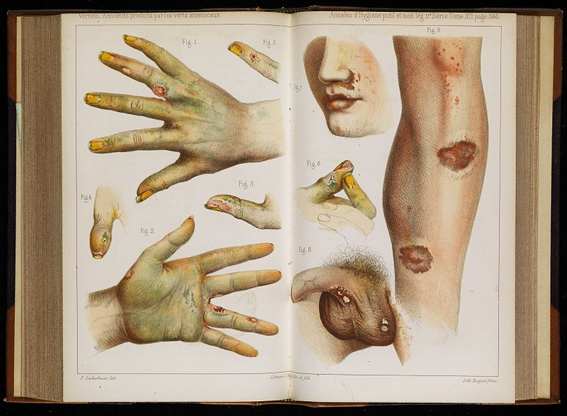 A medical text depicting illustrations of lesions due to arsenic exposure