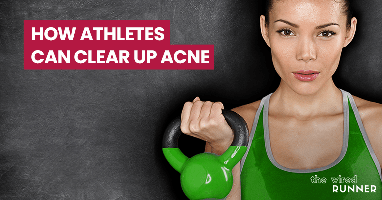 How Athletes Can Clear Up Acne