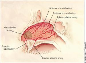 ENT_acute_nose_arteries