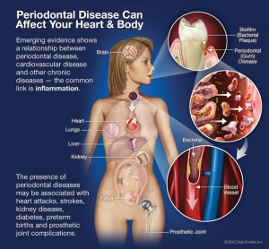 periodontal-disease-systemic