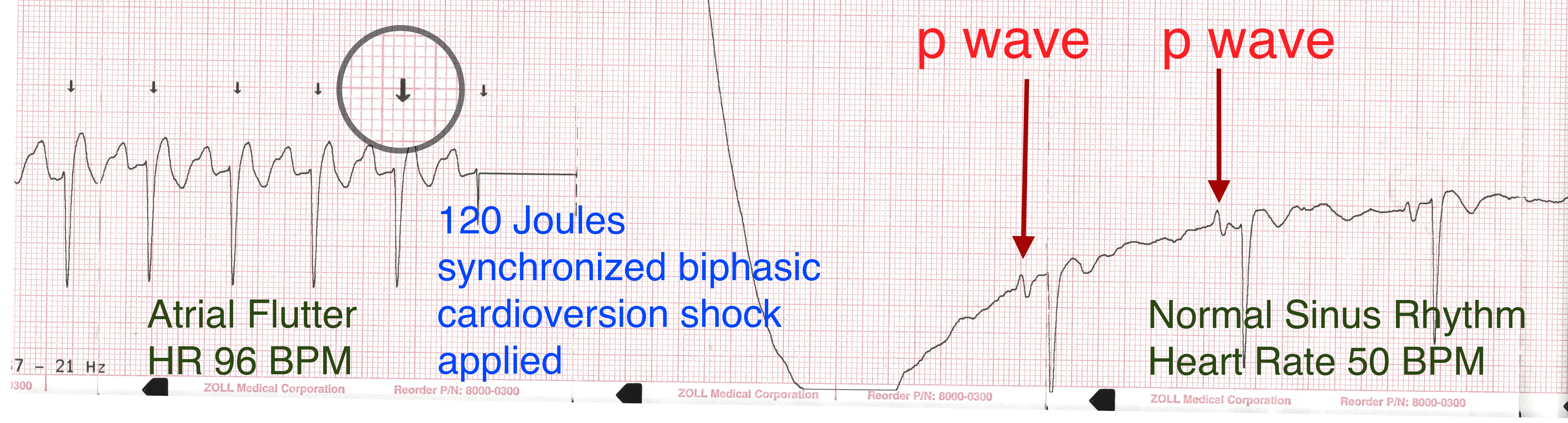Atrial Fibrillation: How Many Times Can You Shock The Heart