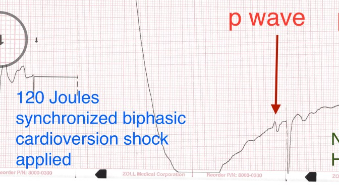 Atrial Fibrillation: How Many Times Can You Shock The Heart?