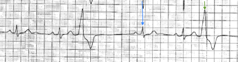 ECG from 70 year very vigrous man who had 20 thousand PVCs in 24 hours. Every third beat is a PVC (green arrow)